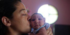 microcephalie zika explication